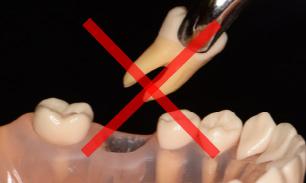 特別な虫歯治療