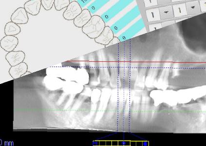 歯を残す技術